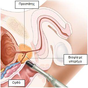 Biopsia_prostati