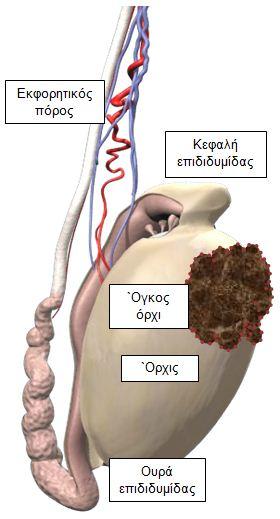 karkinos-orxi-2